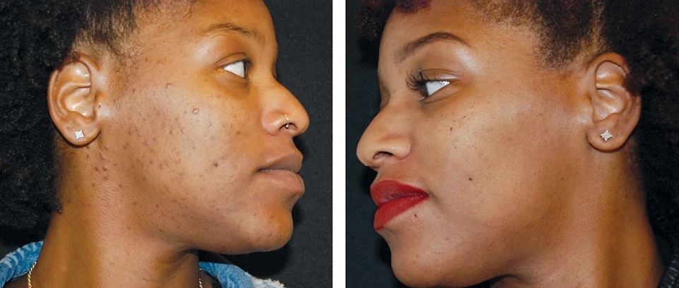 BEFORE and AFTER: The VI Peel is a gentle, yet powerful mid-level medical-grade chemical peel for the treatment of fine lines and wrinkles, age  spots,  acne scarring, hyperpigmentation, melasma, rosacea, enlarged pores, oil balancing, and overall skin health.